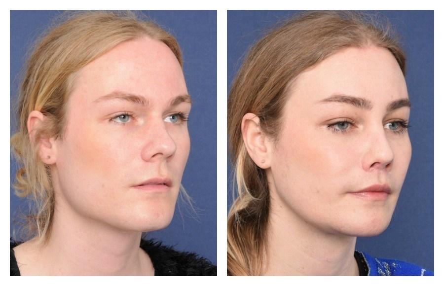 Facial feminization surgery — pic 12